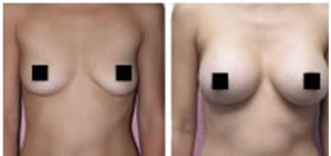 Breast Actives Before and After